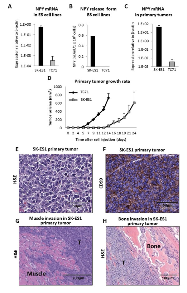 TC71 and SK-ES1 ES cells varying in NPY expression and release give rise to invasive primary tumors.