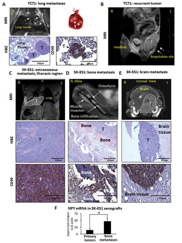 TC71 xenografts give rise to lung metastases and local relapses, while SK-ES1 xenografts metastasize to soft tissues of the thoracic region, bones and brain.