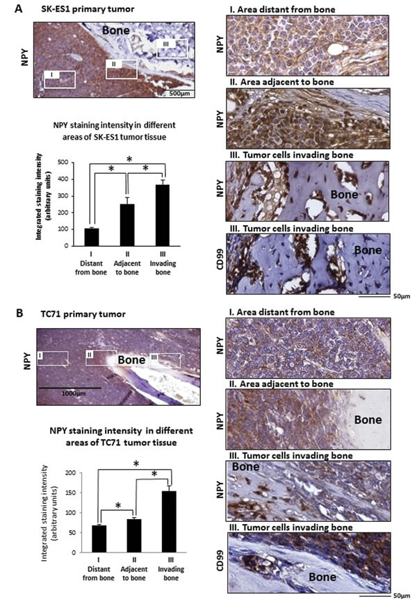 Induction of NPY expression in areas of bone invasion within ES primary tumors.