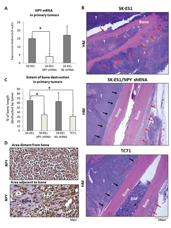 NPY knock-down reduces bone degradation in SK-ES1 primary tumors.