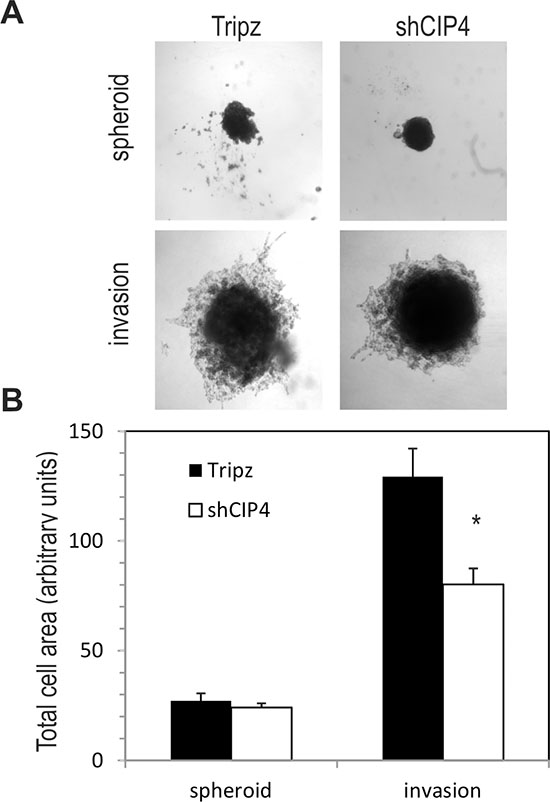 CIP4 promotes TNBC cell invasion.