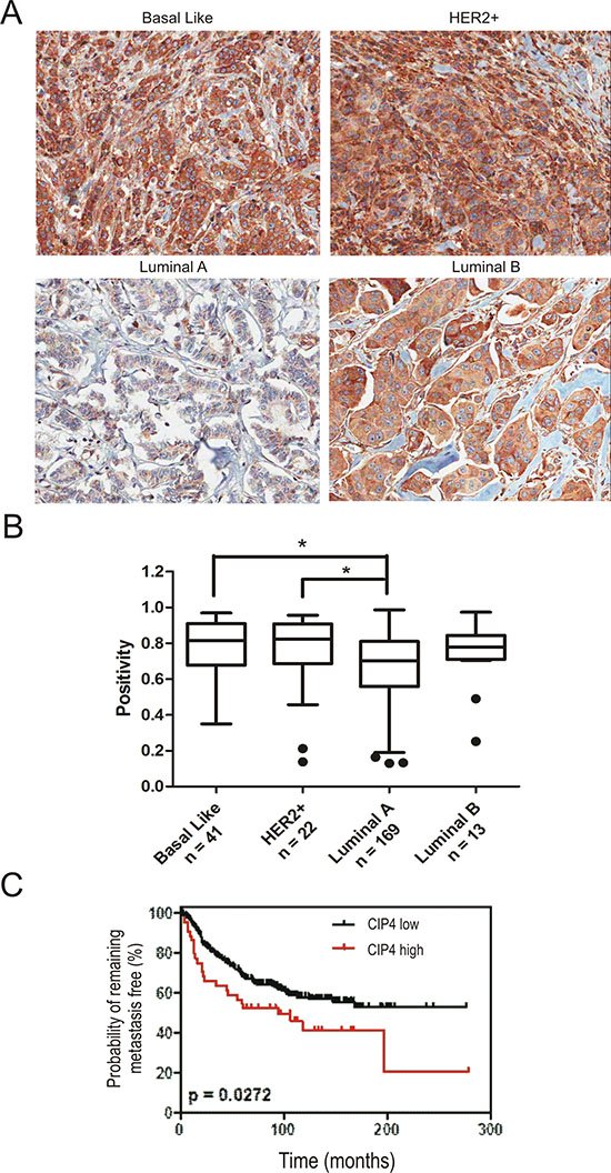 Expression of CIP4 varies between TNBC subtypes and is linked to risk of metastasis.