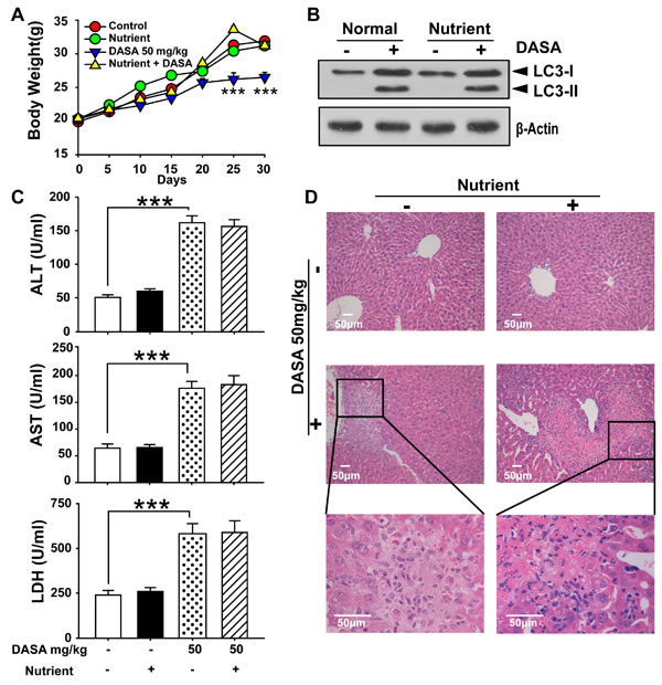 Supplemental nutrients had no effect on the autophagy and liver injury of dasatinib.
