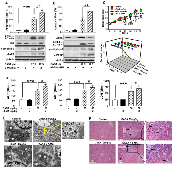 Dasatinib-induced autophagy protects against its hepatotoxicity both