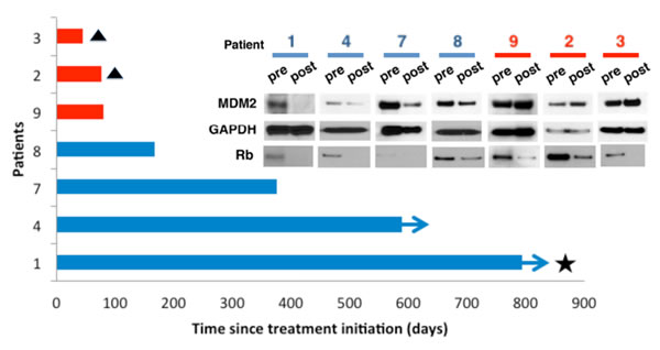 MDM2 loss is associated with patient response to Palbociclib.
