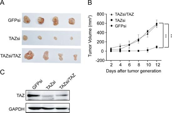 TAZ is essential for neuroblastoma tumor growth in vivo.
