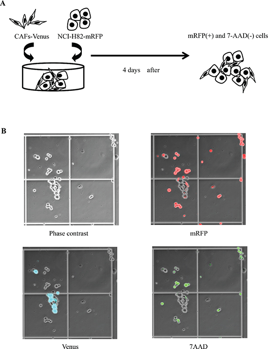 Co-culture model of SCLC cell lines and cancer-associated fibroblasts (CAFs).