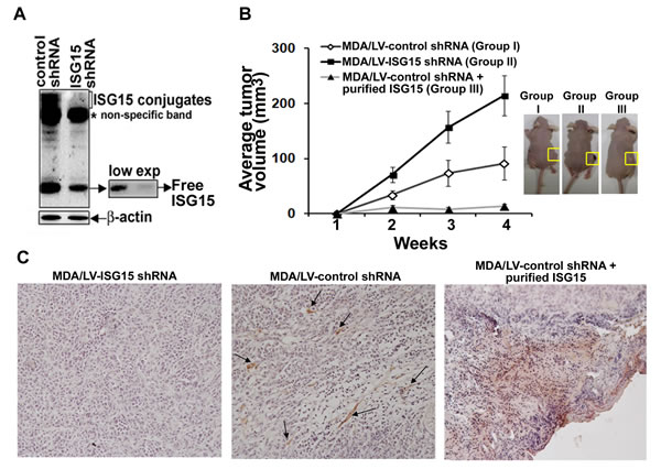 ISG15 inhibits MDA-MB-231 breast tumor growth in nude mice and induces NK cell filtration into xenograft tumors.