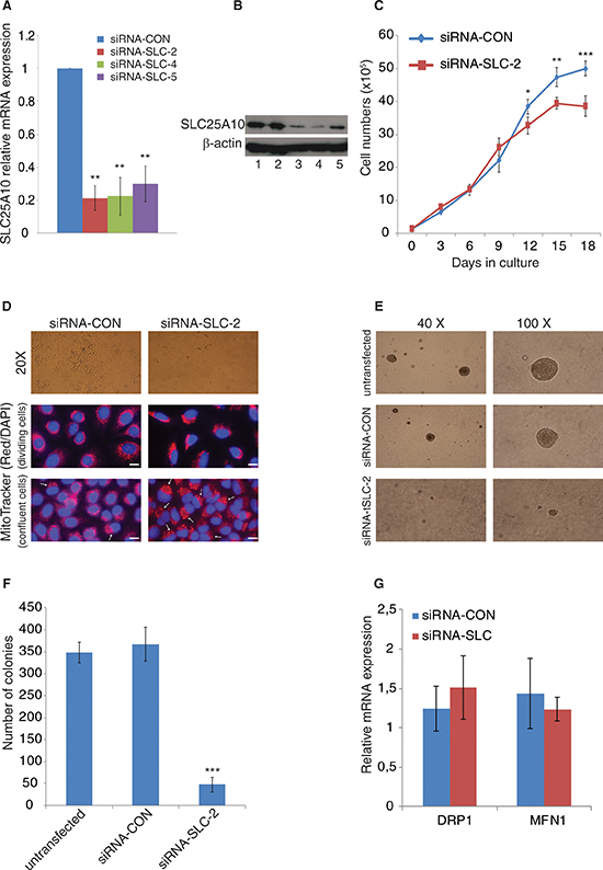Growth behavior and morphology changes of SLC25A10 knockdown cells.