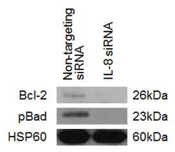 The effect of IL-8 knockdown on the expression levels of anti-apoptotic proteins.