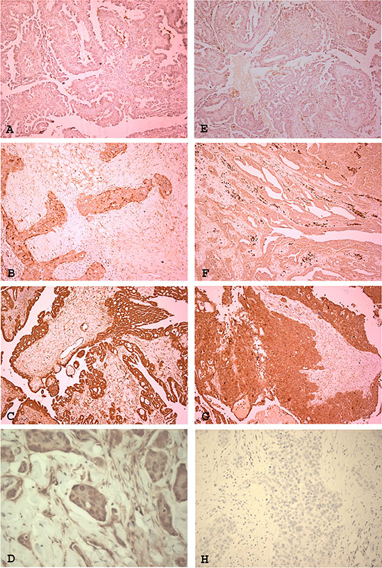 Expression of IL-8 receptors RA and RB in ovarian high grade serous carcinoma.