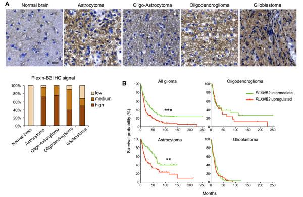 Plexin-B2 expression in glioma correlates with survival.