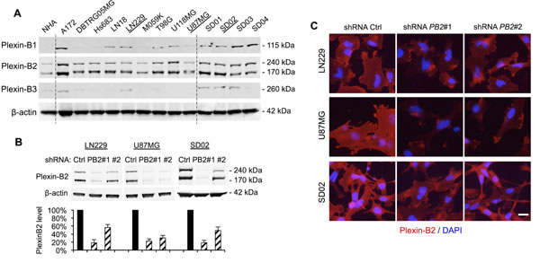 Plexin-B2 expression in glioma cell lines and shRNA knockdown.