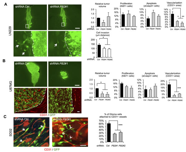 Invasive glioma growth is diminished by Plexin-B2 knockdown.