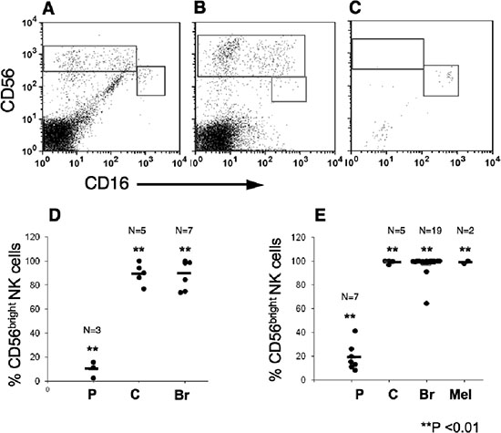CD56bright CD16dim natural killers subset are highly enriched within melanoma, breast and colon tumors.
