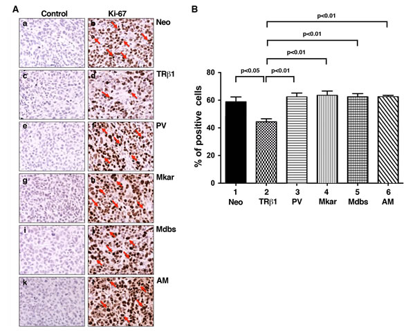 Comparison of cell proliferation by immunohistochemical analysis using the Ki-67 marker in tumor cells derived from Neo control cells, MDA-TRβ1, MDA-PV, MDA-Mkar, MDA-Mdbs, or MDA-AM cells.