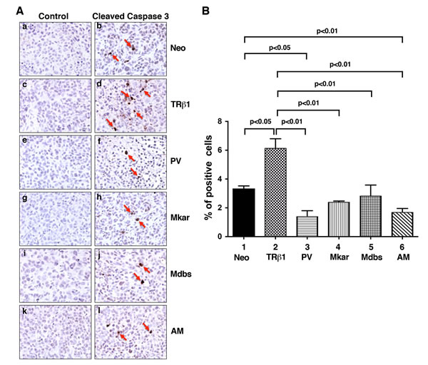 Comparison of apoptosis by immunohistochemical analysis using cleaved caspase 3 as a marker in tumor cells derived from Neo control cells, MDA-TRβ1, MDA-PV, MDA-Mkar, MDA-Mdbs, or MDA-AM cells.