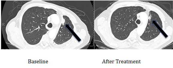 Computerized tomographic scan of the lungs of Patient #1 (Table 2) with EGFR aberration in exon 20 (D770>GY)) before and four months after treatment with a cetuximab-based regimen shows tumor regression.