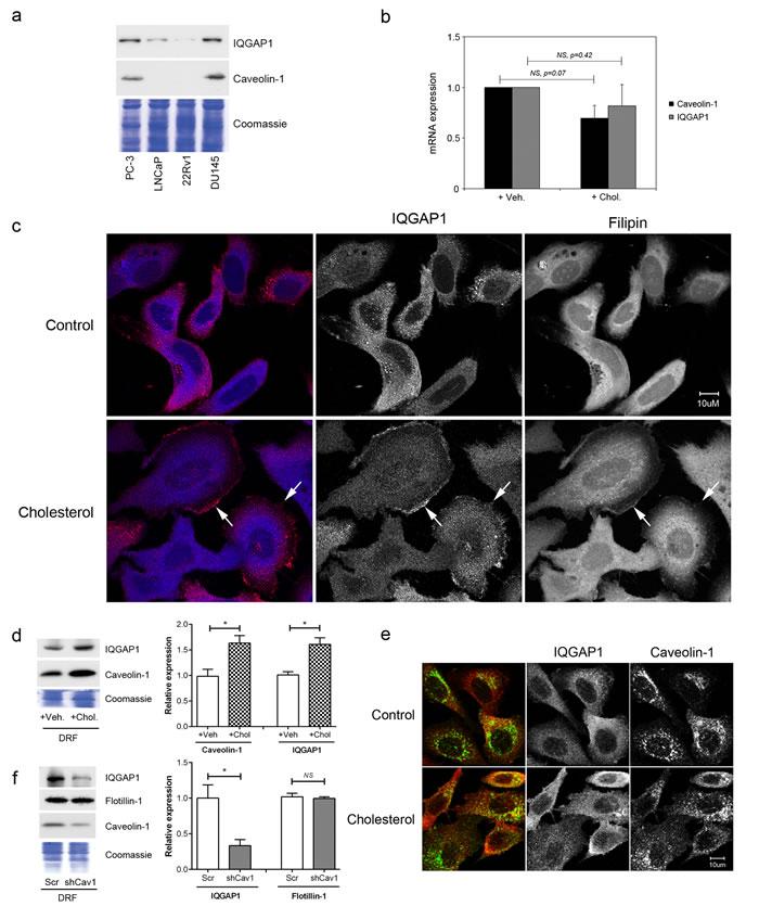 Cholesterol regulates IQGAP1 targeting to detergent-resistant fractions.