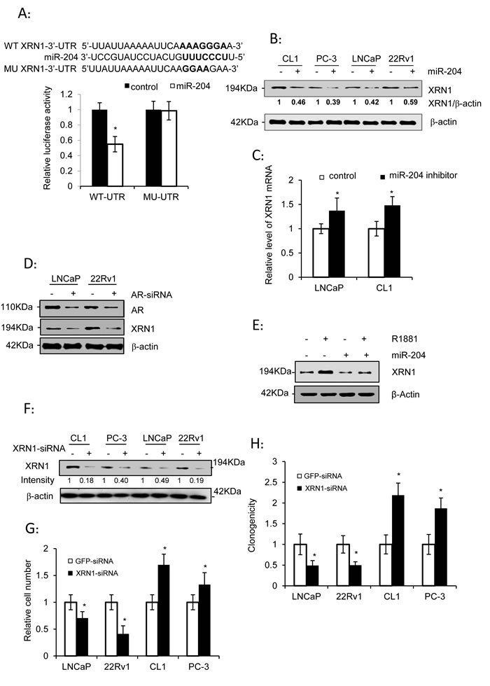 XRN1, as a miR-204 target, is a dual regulator of PCa cell growth.