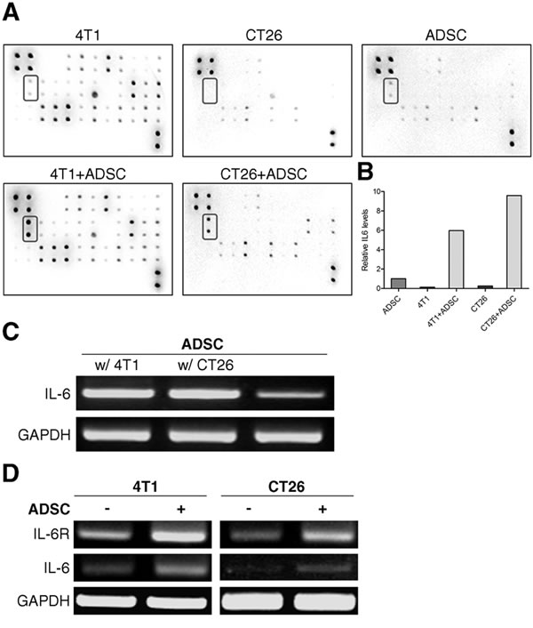 ADSCs interaction with cancer cells causes a rise in the levels of IL-6.