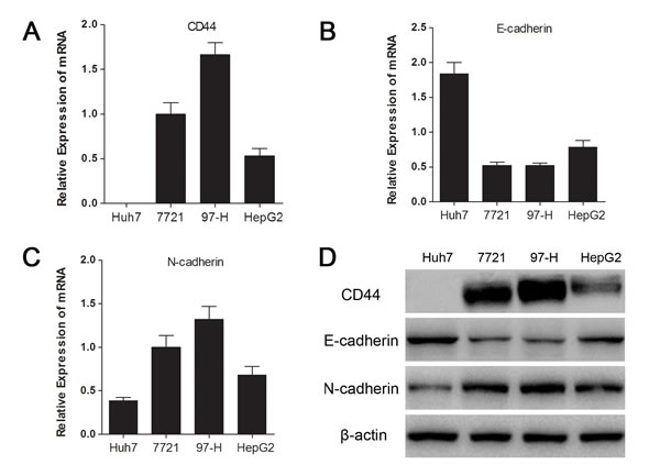 Fig.1: CD44 expression was associated with the mesenchymal phenotype in HCC cell lines.