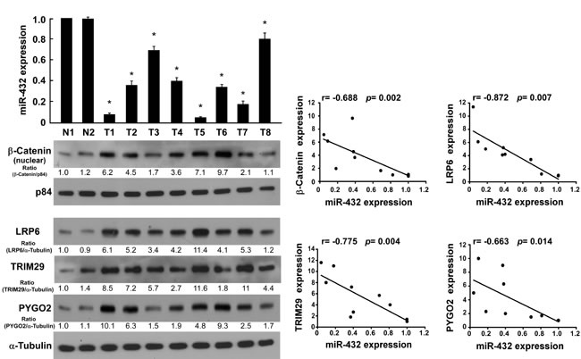 Fig.6: Clinical relevance of miR-432 downregulation and β-catenin nuclear accumulation, and the expression of LRP6, TRIM29 and Pygo2 in HCC.