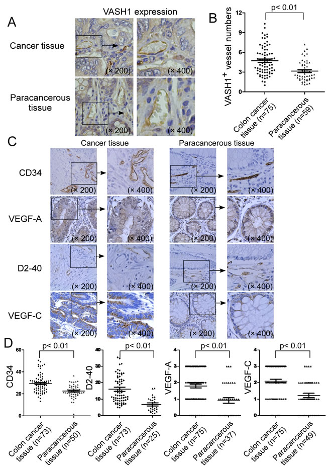 Expression of VASH1 in cancer stroma of colon cancer patients.