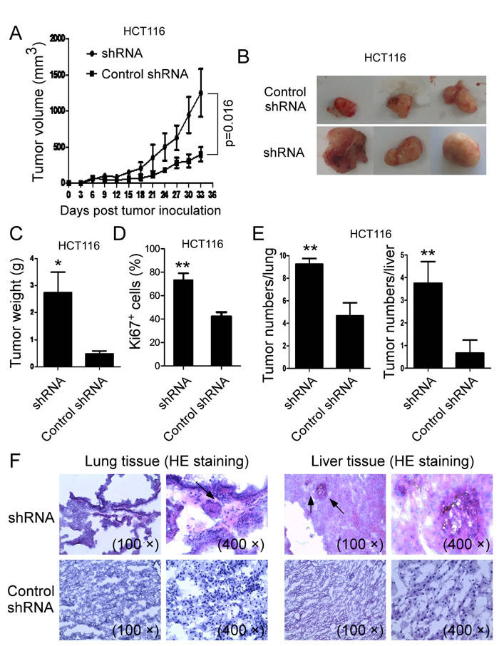 Knockdown of VASH1 in human colon cancer HCT116 cells promoted tumor tumorigenesis and metastasis