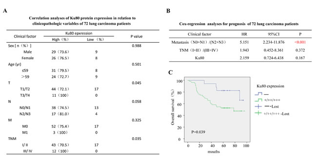 The clinical correlation analyses of Ku80 protein expression in 72 lung carcinoma patients.