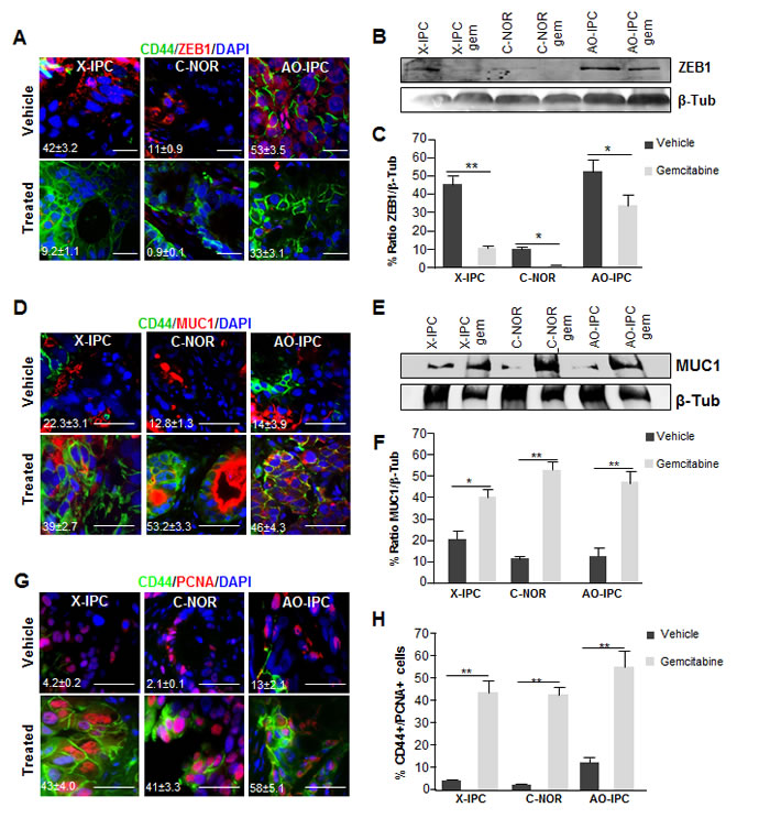Deregulation of differentiation markers in PDXs after chemotherapy.