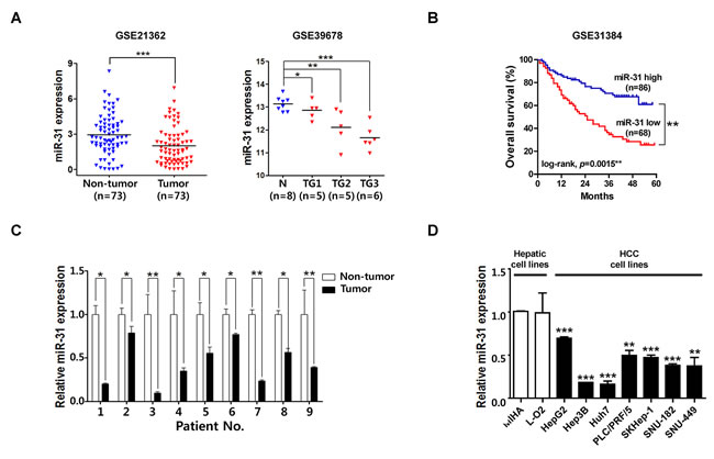 MiR-31 is down-regulated in hepatocellular carcinoma.
