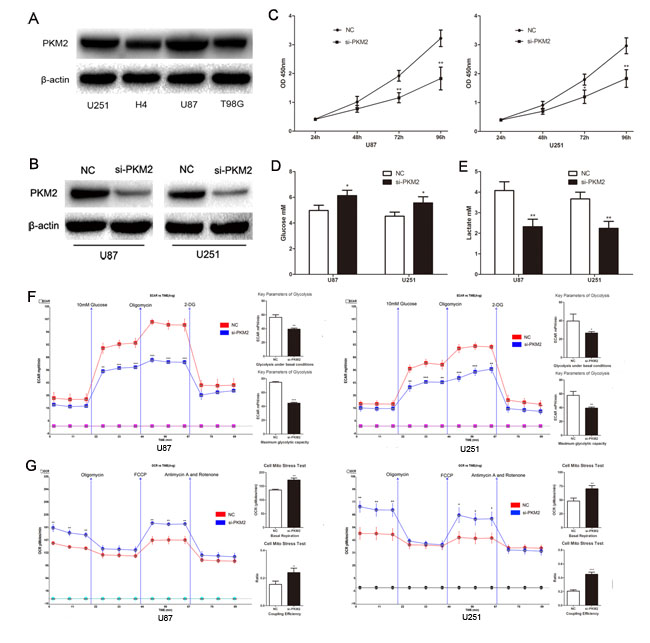 PKM2 promotes glioma cells aerobic glycolysis and proliferation.