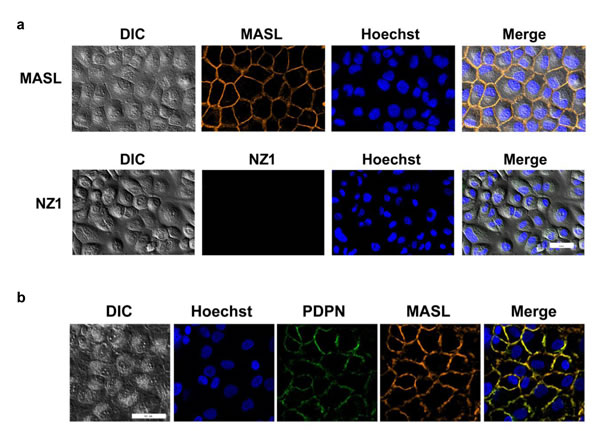 NZ-1 and MASL exhibit different OSCC cell binding dynamics.