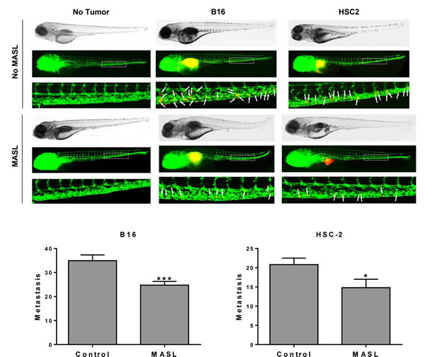 MASL inhibits melanoma and OSCC cell metastasis in zebrafish embryos.