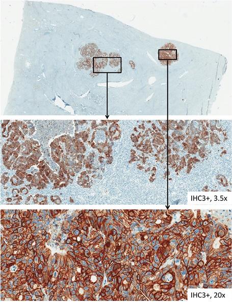 HER-3 immunohistochemical staining of tissue samples from liver metastases.
