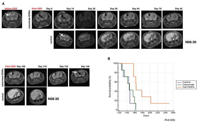 Animal survival studies after CED treatment with cetuximab-IONPs in a human GBM neurosphere model.