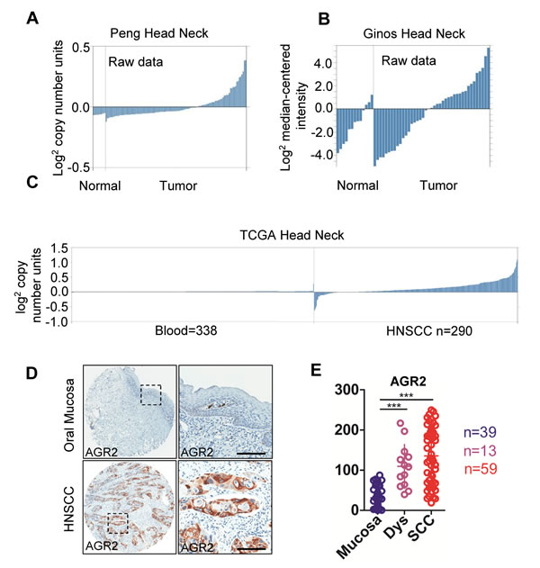 AGR2 expression in human head neck cancer.