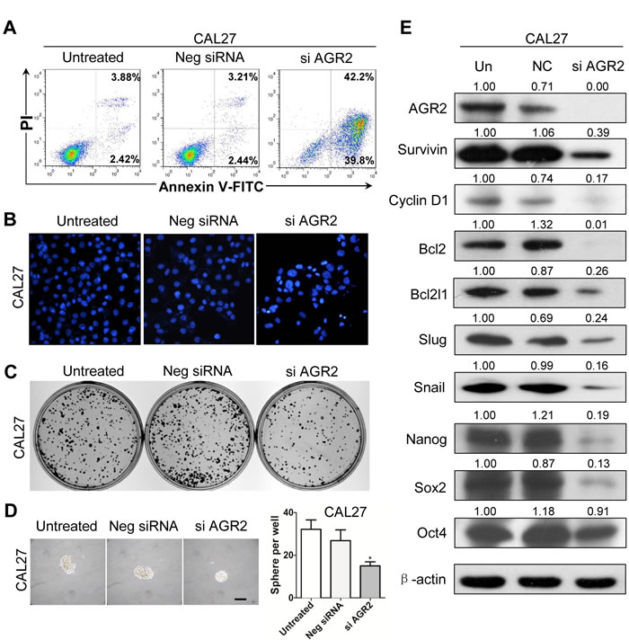 Knock down of AGR2 induces cell apoptosis and reduces colony formation in CAL27 cell line.