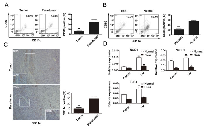 Fig 7: DCs with immature phenotypes and functional defects in HCC patients.