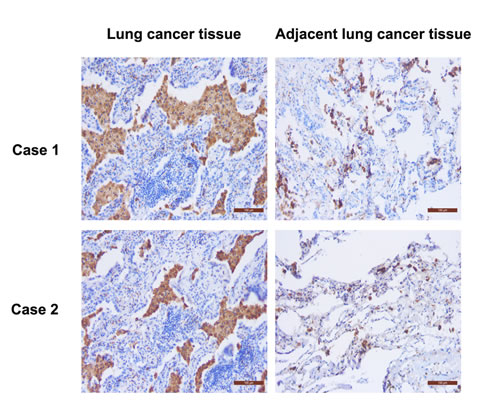 Immunostaining of CD68 protein in the cancerous and adjacent lung tissues from two lung cancer patients.