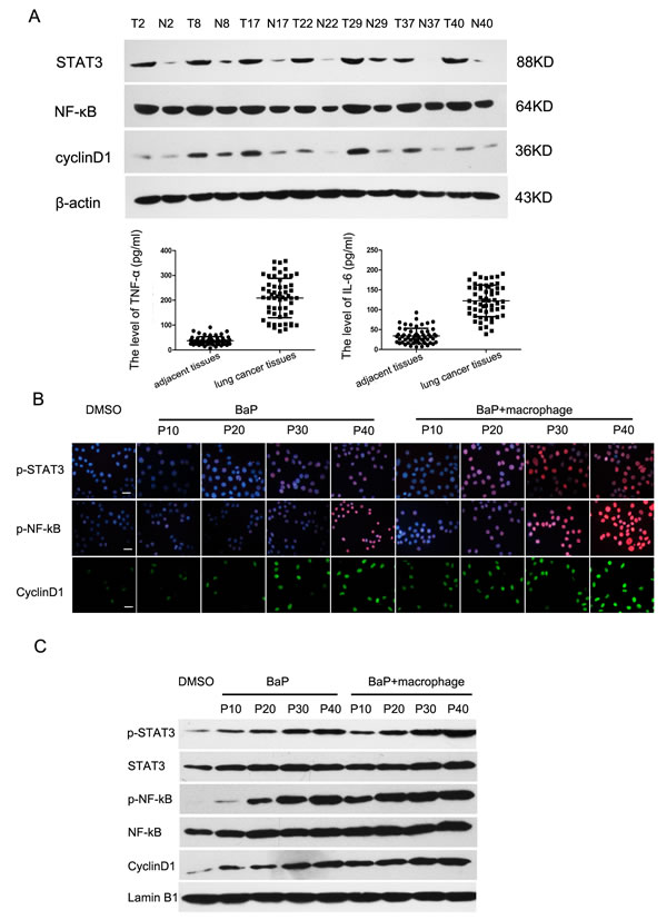 Activation of the NF-κB and STAT3 signaling pathways in lung cancer.