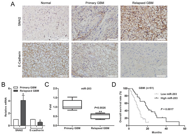 Downregulation of miR-203 correlates with chemotherapy resistance and poor patient survival in GBM.