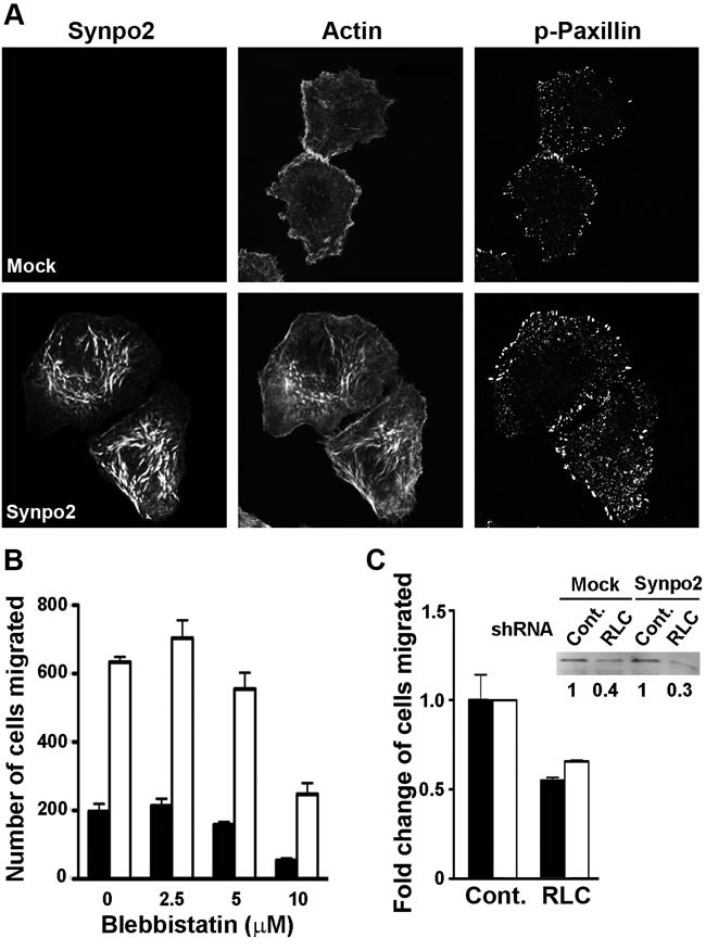 Synpo2-enhanced lamellipodia formation and cell migration is independent of myosin and focal adhesion maturation.