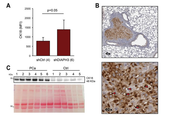 CK18 is a marker of large oncosomes