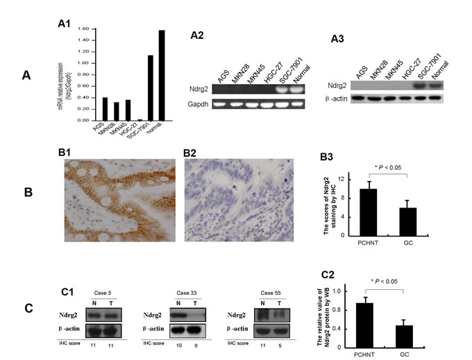 Expression of Ndrg2 is significantly reduced in gastric cancer cells.