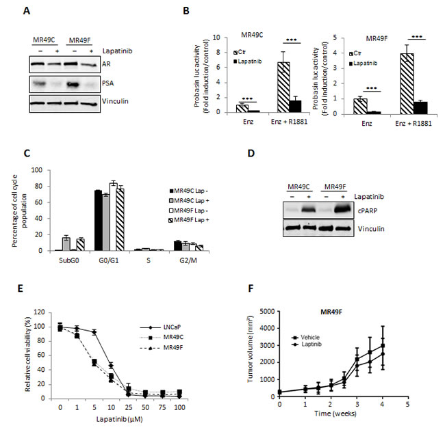 Lapatinib effectively inhibits AR activation and proliferation