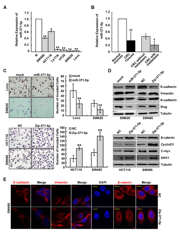 miR-371-5p is associated with CRC metastasis and suppresses invasion and EMT of CRC cells