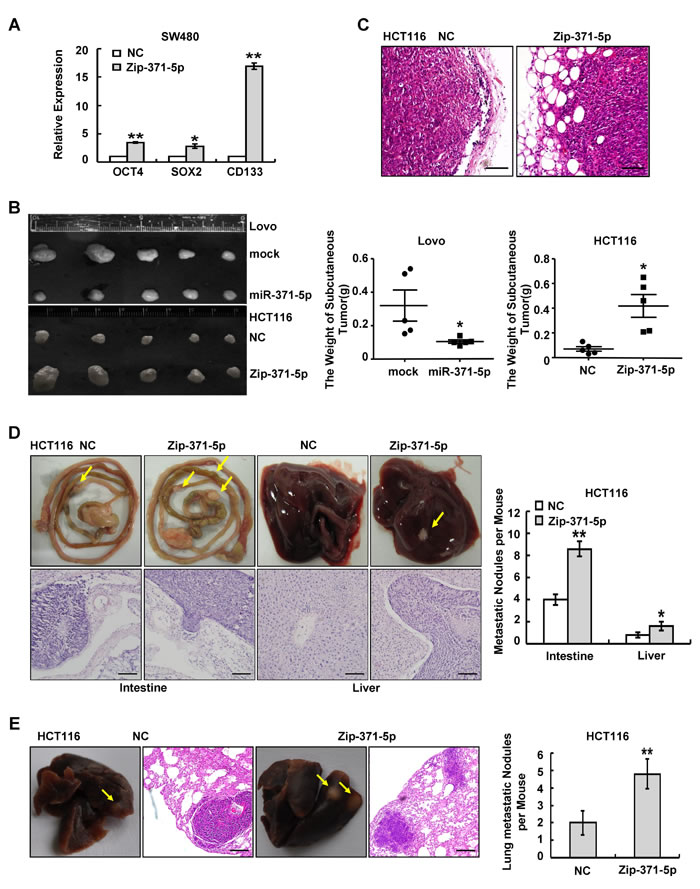 miR-371-5p is sufficient to suppress stem cell properties and metastasis of CRC cells.