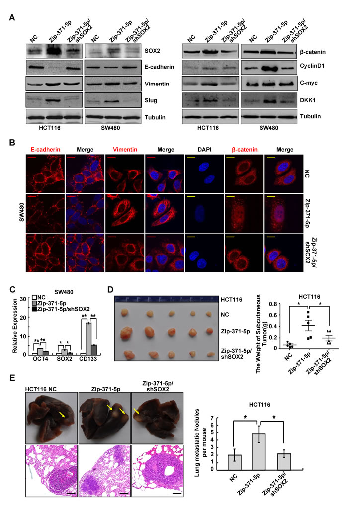 SOX2 is a functional target of miR-371-5p.
